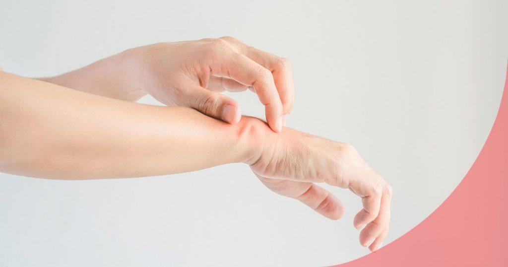 psoriasis sintomas causas tratamiento