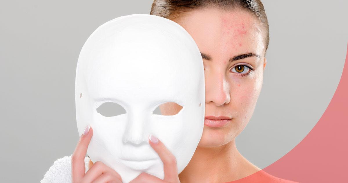 marcas acné cómo eliminarlas